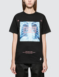#FR2 X-ray Short Sleeve T-shirt Picture