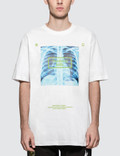 #FR2 X-Ray S/S T-Shirt Picture