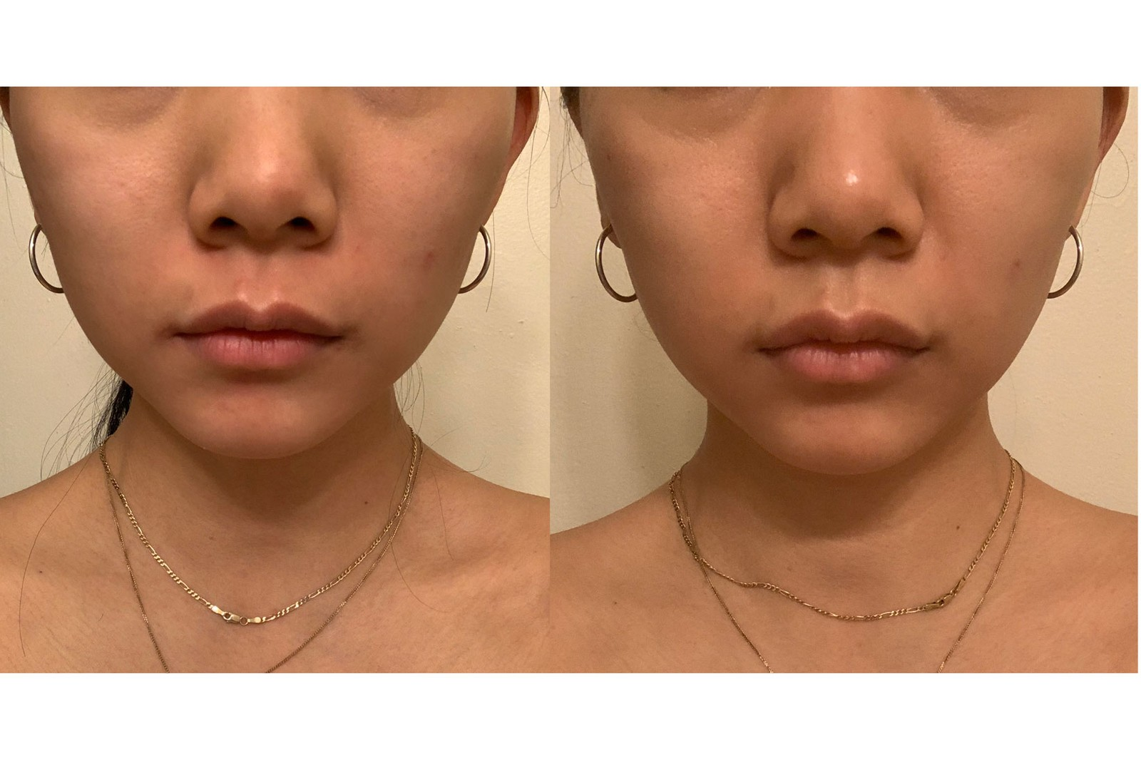 ZIIP GX Beauty Device Skincare Golden Gel Melanie Simon
