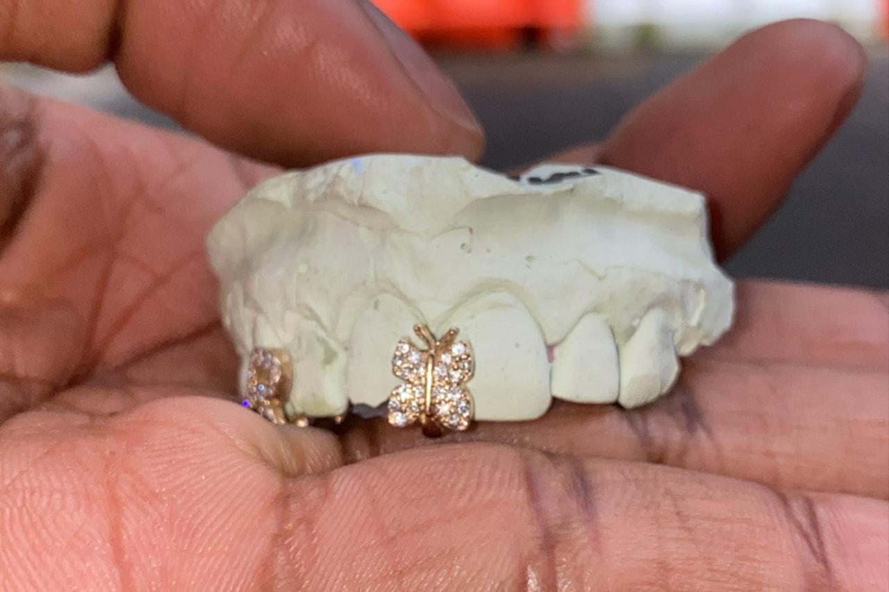 Helen Harris helenwiththegoldteeth Grillz New York Honeycomb Enamel Floating Letters Gemstones Opals Teardrop Gap Filler French Dip Diamond Cuts Openface Flats Caps Gold Teeth
