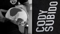 CODY SUBIDO -- Injury Story