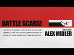TOMORROW: ALEX MIDLER'S BATTLE SCARS