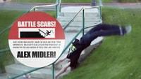 ALEX MIDLER'S BATTLE SCARS