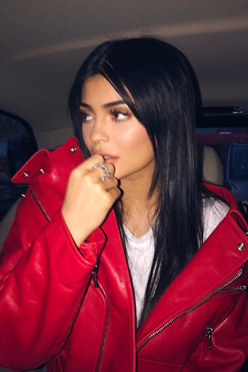 Kylie Jenner Lip Fillers Removed Instagram Surgery Natural