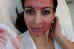 "Picture of Kim Kardashian Is Suing Doctor Over the Famous ""Vampire Facial"""