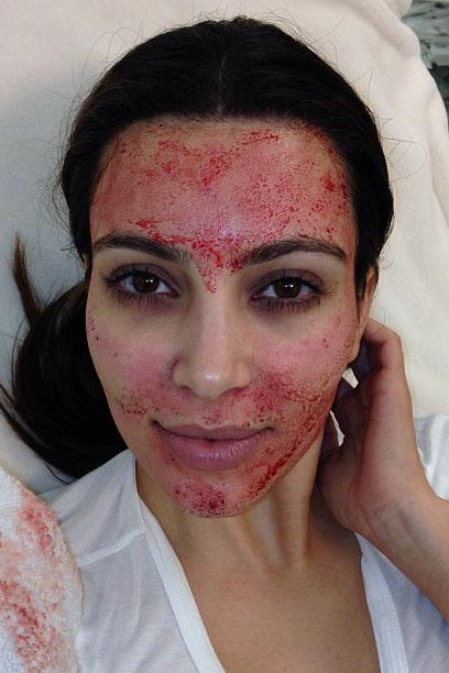 Kim Kardashian Files Lawsuit for Vampire Facial Doctor Copyright Claims False Marketing Skincare Procedure Doctor Charles Runels