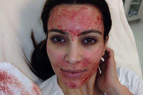 Kim Kardashian Vampire Facial PRP Microneedling