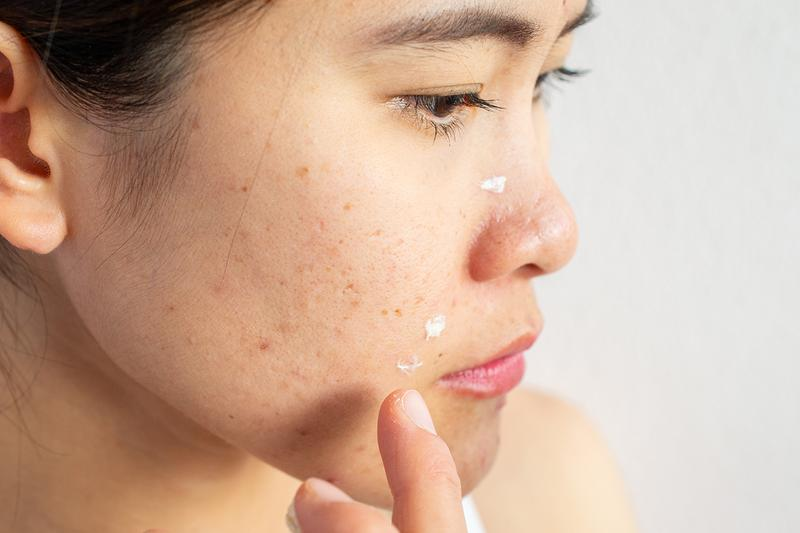 Acne Pimple Woman Cream Skin Skincare
